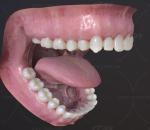 牙 口腔 牙科 牙科 假牙 拔牙 骨钉 正畸 牙齿 恒牙 舌头 牙床 智齿 腮腺 牙龈 牙髓 蛀牙