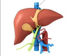 肝脏移植模型