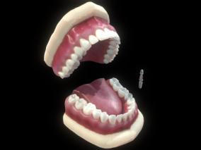 牙 口腔 蛀牙 牙床 牙髓