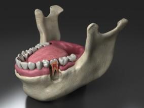 牙齿  下颌骨  牙切片  口腔  舌头  人体结构  牙床  牙神经 3d模型